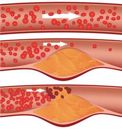 colesterolo trigliceridi
